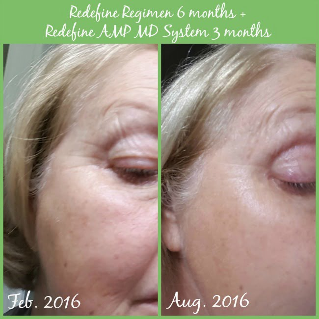 Before and After Photos of using the Redefine Regimen by Rodan and Fields